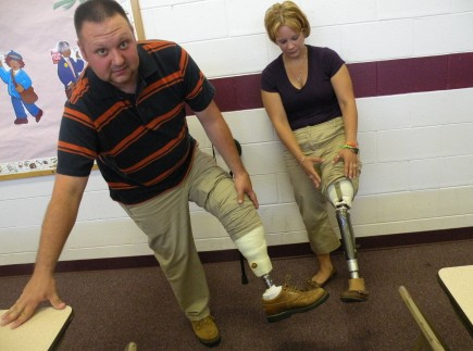 Aaron and Jennifer Wilmoth show off their prosthetic legs before a worship assembly at the Gateway church in Southgate