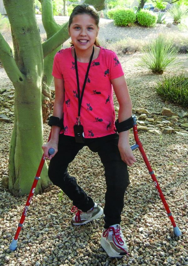 Lera Doederlein was born with arthrogryposis, which affected multiple joints in her legs. She spent most of her life in leg braces and crutches until she received a double, above-knee amputation in 2016.
