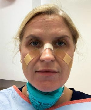 Langford wore bandaids on her nose and face to protect herself from getting sores on her face from wearing an N-95 mask for hours at a time.